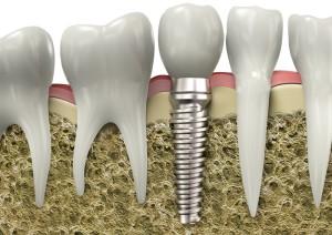 implant-item-0001
