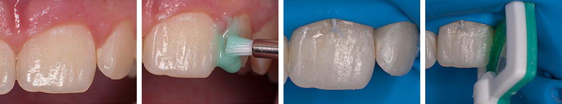 lechenie-kariesa-molochnyx-zubov-11