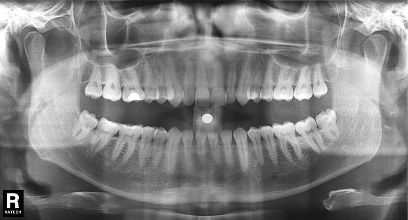 Где сделать в краснодаре панорамный снимок зубов