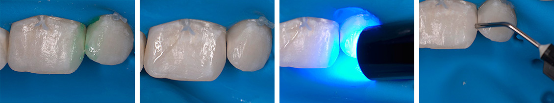 lechenie-kariesa-molochnyx-zubov-12